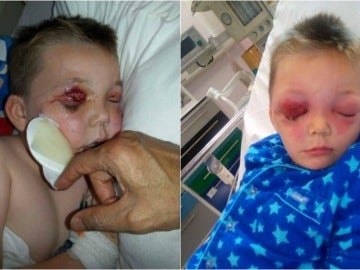 El niño ingresado en el hospital por la picadura de un insecto en el ojo