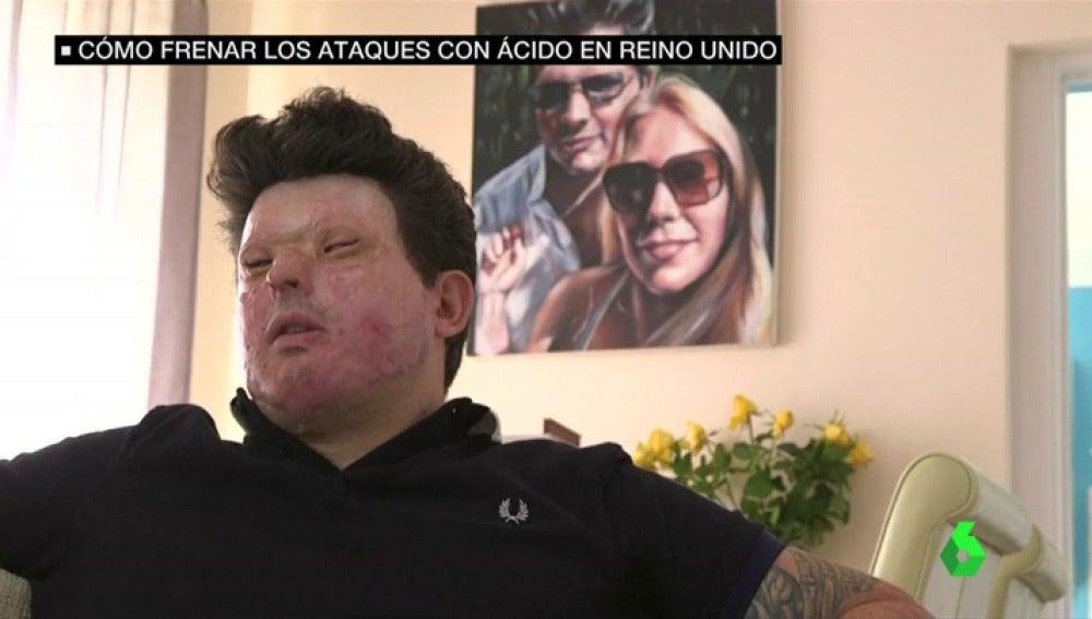 Andreas Christopheros víctima de un ataque con ácido