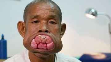 Eng Kheng antes de la operación del tumor