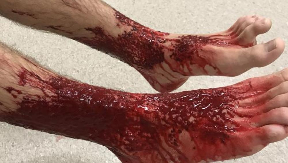 Los pies de Sam Kanizay tras el ataque de las criaturas