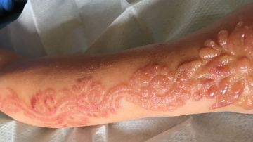 Marcas que dejó el tatuaje de henna
