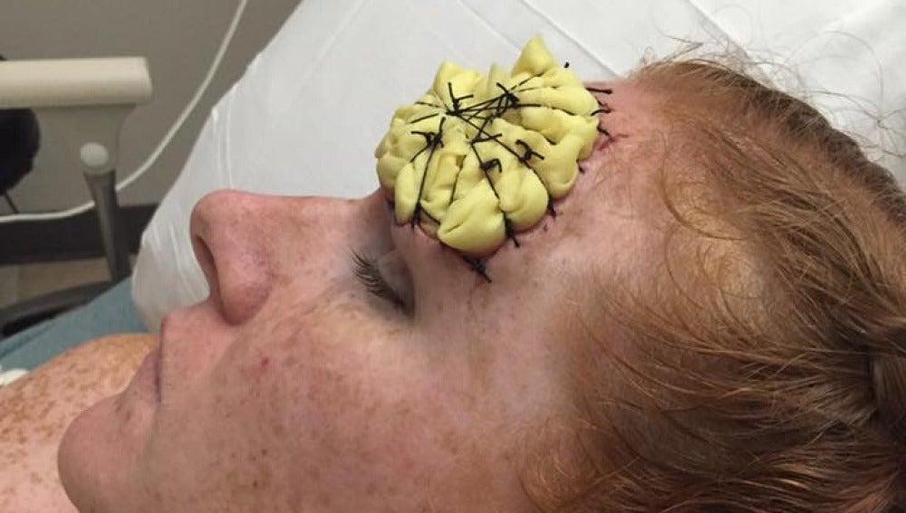 Melanoma desmoplásico
