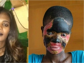 Atsede antes y después del ataque de ácido