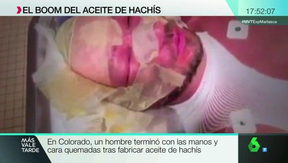 ACEITE DE HACHIS