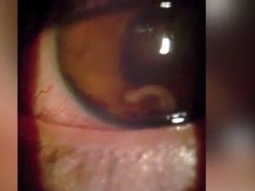 El joven con el gusano parásito en el ojo