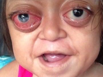Anabelle sufre el 'Síndrome de Crouzon', una rara enfermedad genética