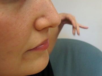 Es posible que un diente extra termine creciendo en tu nariz