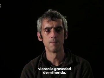 El hombre que perdió la visión de un ojo el 1 de octubre, Roger Español