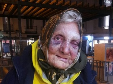 La anciana agredida por varias personas en Madrid.