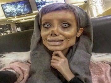 Sahar Tabar, la joven que quería parecerse a Angelina Jolie