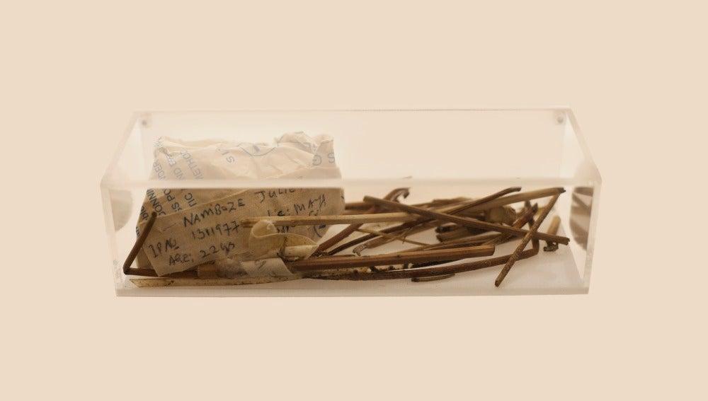 artefactos usados durante un aborto ilegal en Uganda 2002