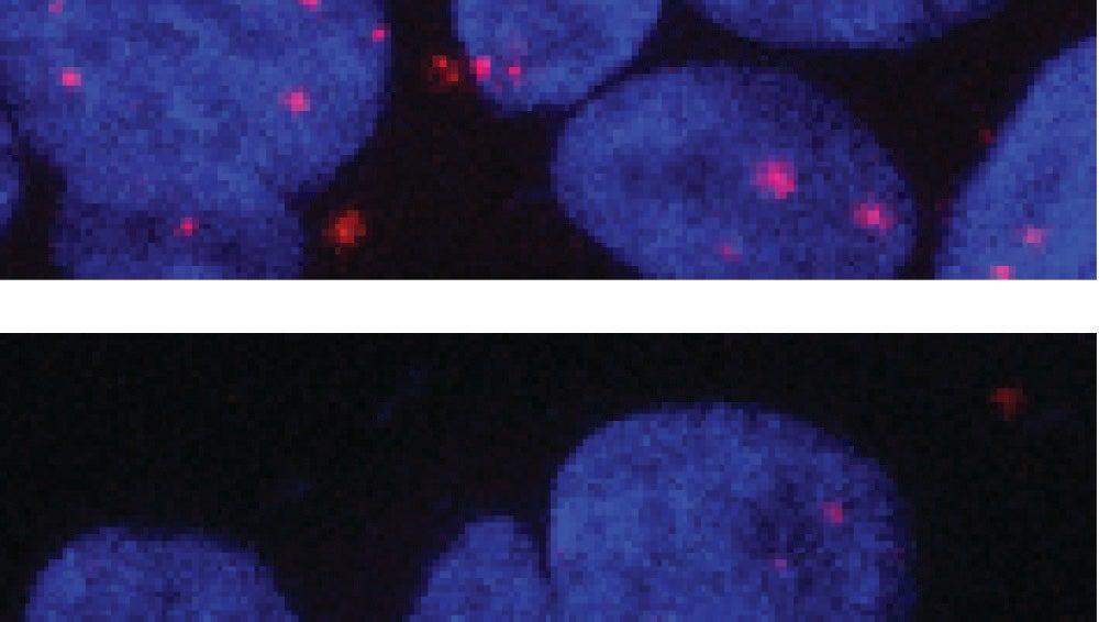 Receptor de andrógenos en el núcleo celular