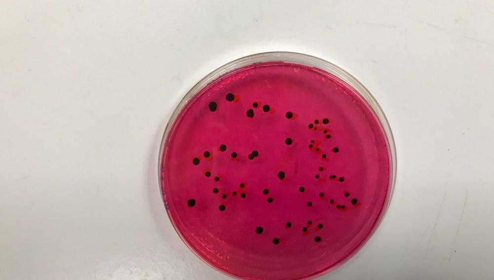 Una aplicacion para detectar salmonela durante la fermentacion del yogur