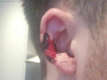 Así quedó la oreja de la víctima tras el mordisco