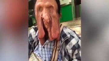 Wiang Boonmee padece una enfermedad rara en la cara