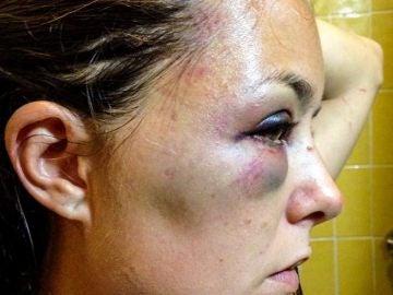 Andrea Carenzo, víctima de un ataque en Ecuador