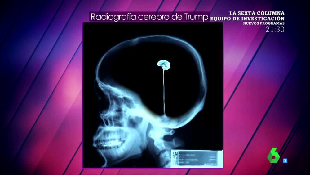 """La doctora Carmen Rica Chona analiza el """"pequeño"""" cerebro de Donald Trump"""