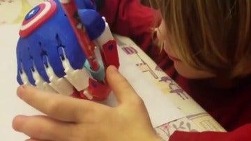 Un niño de cinco años diseña e imprime manos en 3D para niños discapacitados