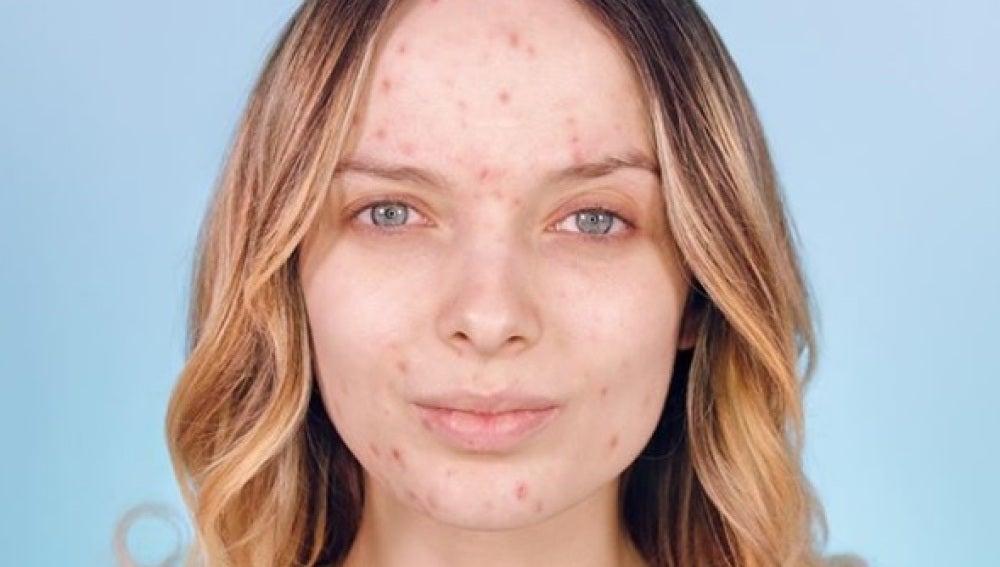 Un grupo de mujeres publica fotos sin maquillaje para normalizar el acné