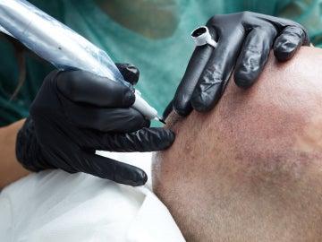 Micropigmentación capilar contra la calvicie