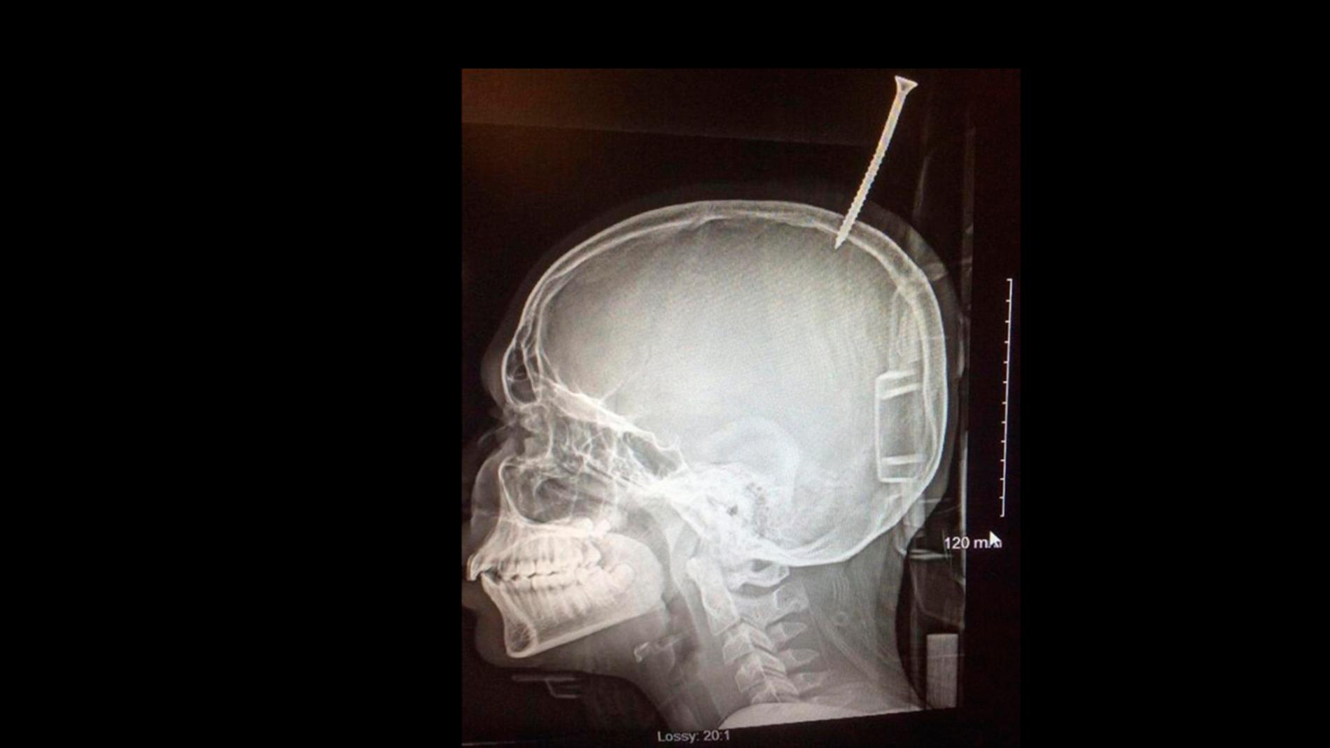 Radiografía que muestra la perforación del cráneo