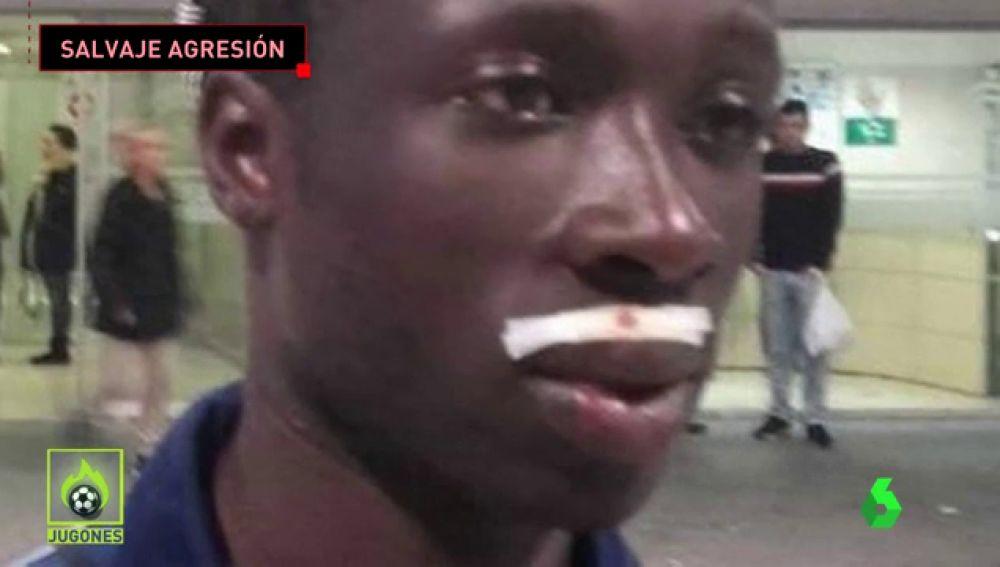 Un futbolista recibe una brutal agresión en Jerez