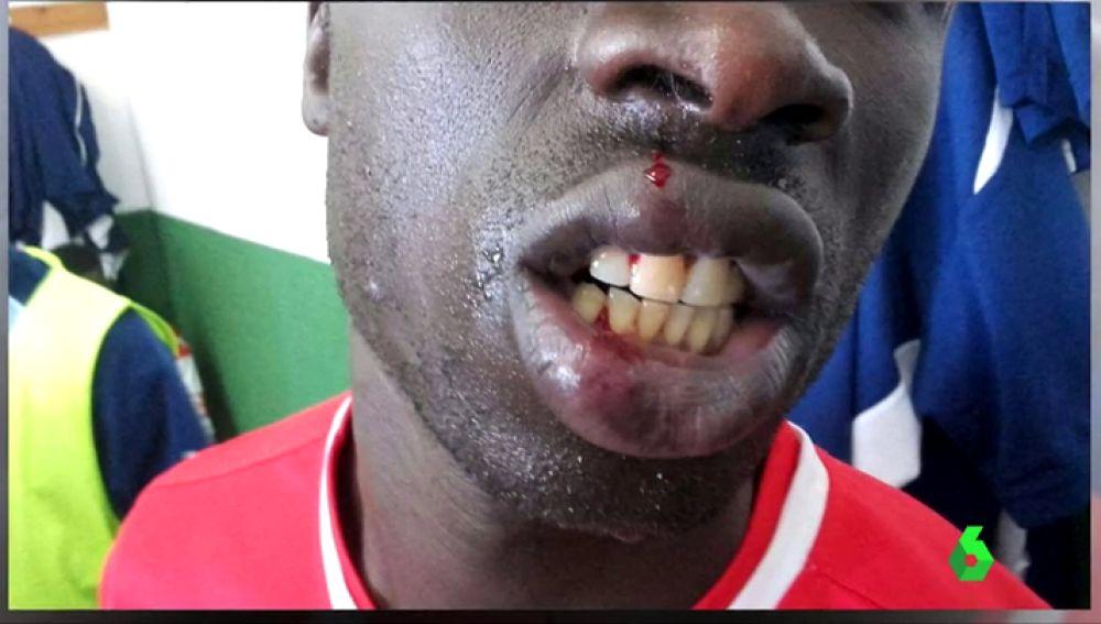 """Nueva agresión racista en el fútbol español: """"Me dijo que me iba a cortar las trencitas"""""""