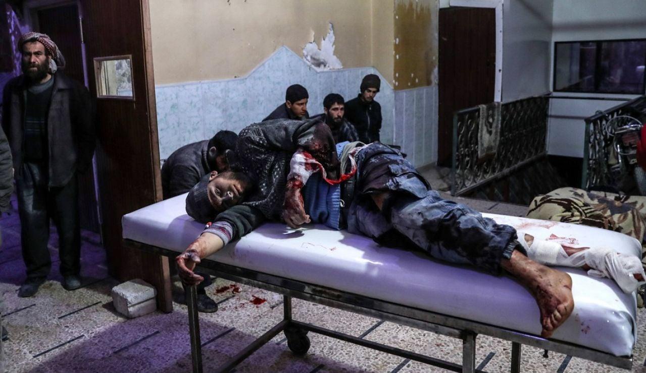 Un herido en la región de Ghouta por los bombardeos de Al Assad