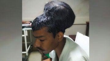 Imagen del hombre operado en La India de un tumor de casi dos kilos