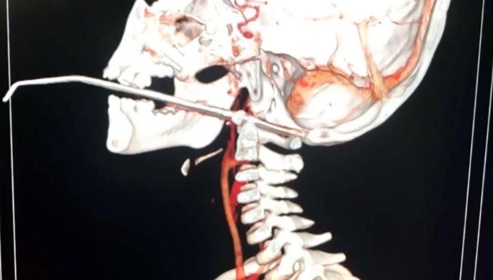 Una aguja atraviesa la garganta de un niño en China