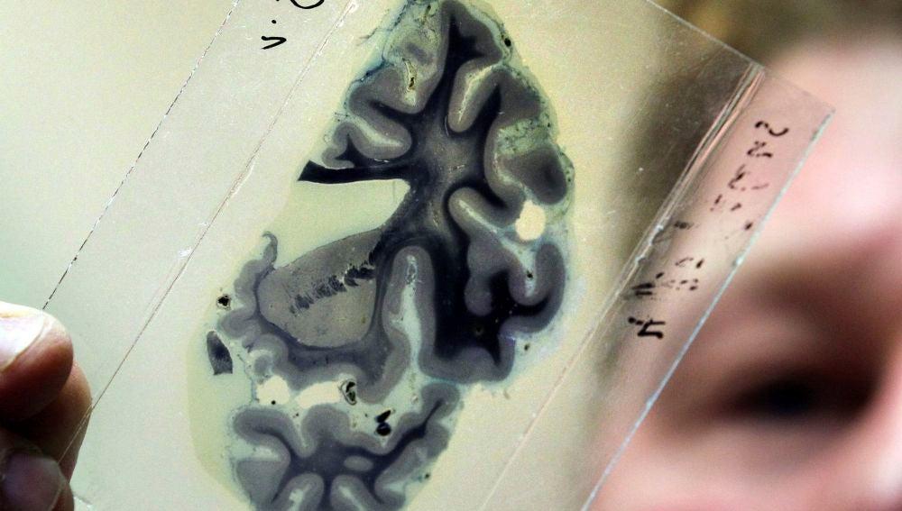Un científico analiza una radiografía del cerebro humano.