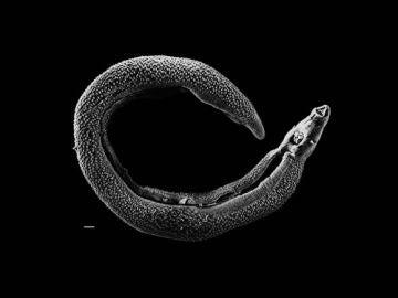 Un grupo de 17 voluntarios ha sido infectado por el esquistosoma