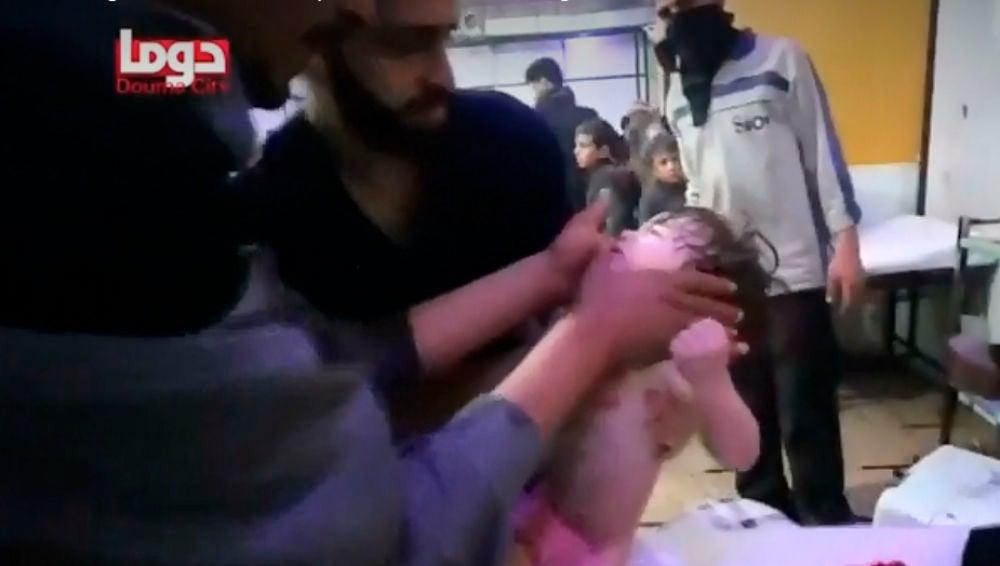 Niños atendidos tras el ataque químico en Duma