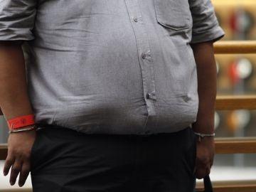 Vista de una persona con obesidad