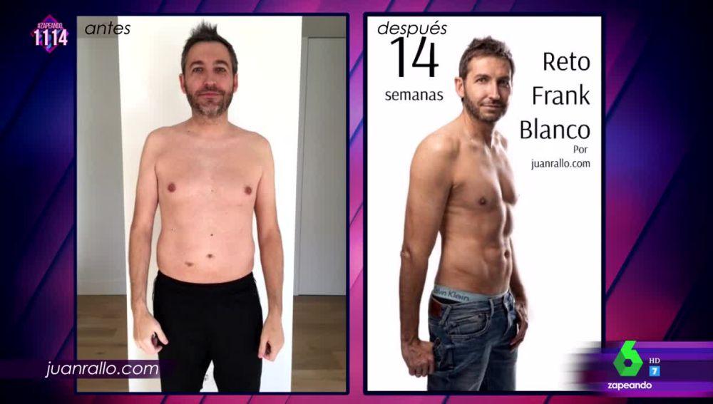 El antes y el después de Frank Blanco