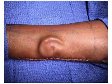 La oreja implantada en el brazo