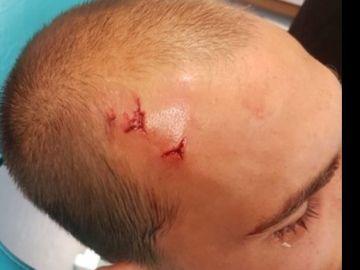 Bas Dost, jugador del Sporting, con una herida en la cabeza