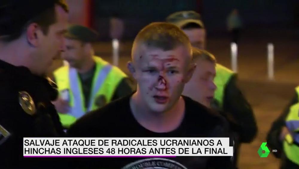 Un grupo de ultras rusos agreden a seguidores del Liverpool en Kiev