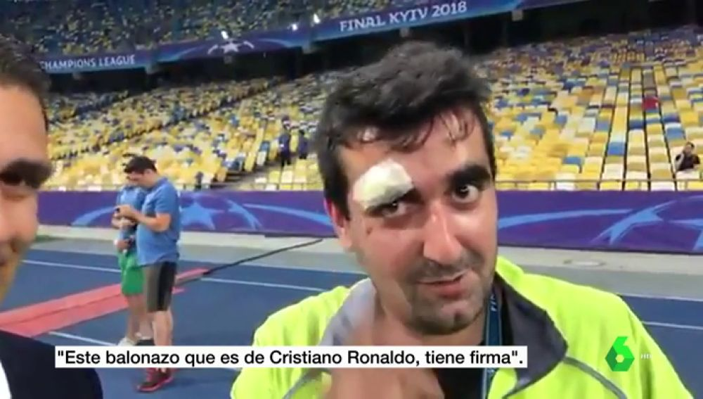 El gran gesto de Cristiano con un cámara tras abrirle la ceja de un pelotazo