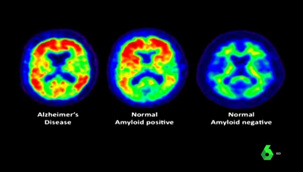 Sufrir apnea del sueño genera más probabilidad de padecer Alzheimer: estos son los pasos para su prevención