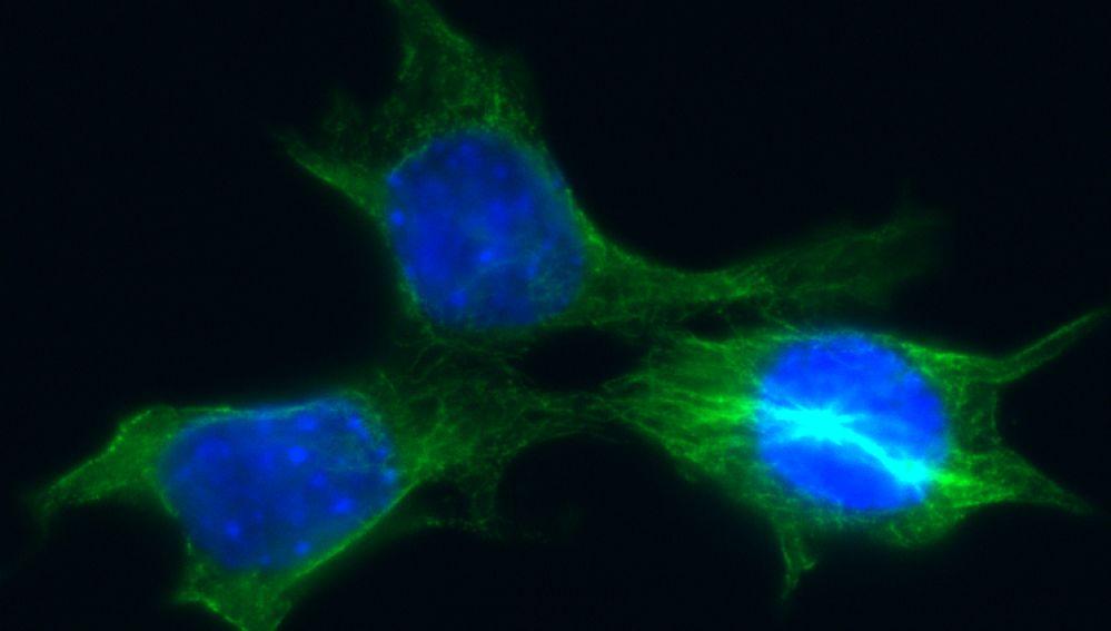Células de cáncer de mama