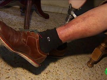El pie diabético, el peor enemigo de la diabetes tipo 2 y principal causa de amputación