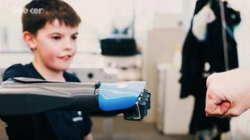 Unos ingenieros crean en 3D un brazo mecánico que evoluciona con la edad del niño