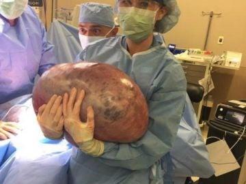 El quiste de 22 kilos extirpado a una joven estadounidense