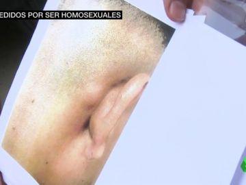 Nueva agresión homófoba: hieren y amenazan de muerte a una pareja gay en Fuenlabrada cuando paseaban de la mano