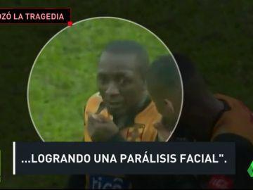 Parocardiaco_Bolvia
