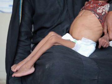 El hambre amenaza a más de cinco millones de niños en Yemen