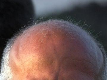 La calvicie es una de las enfermedades más extendidas, sobre todo entre los hombres