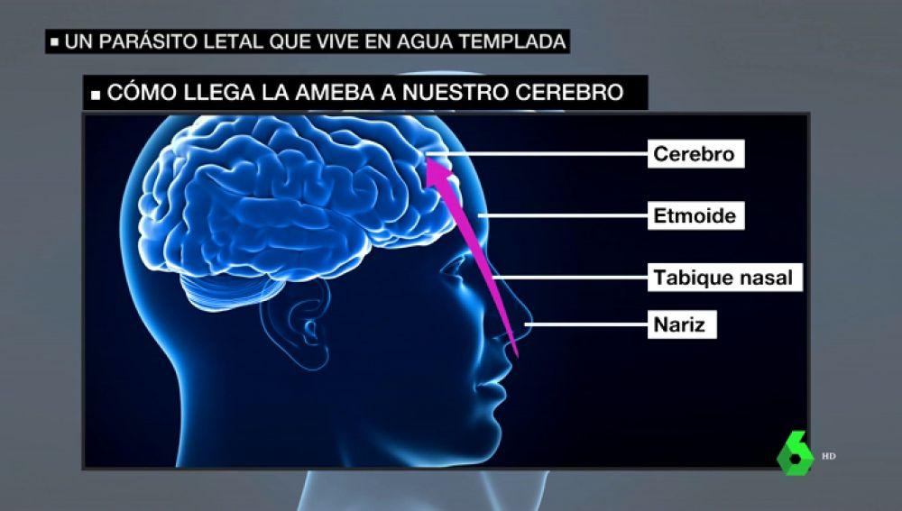cuáles son los síntomas de parasitos en el cerebro