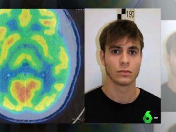 El informe psiquiátrico del cerebro de Patrick Nogueira